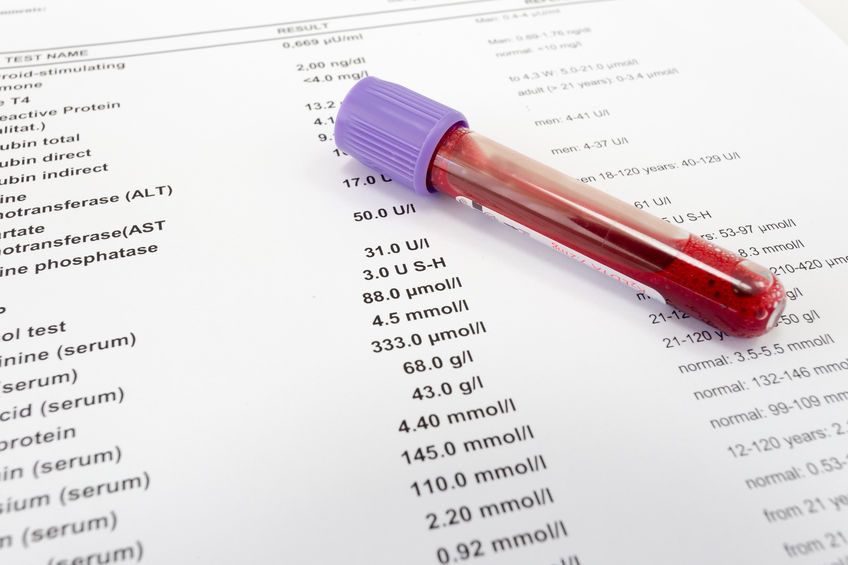 Red blood in test tube on white blank with results in colums. The results are written in English.